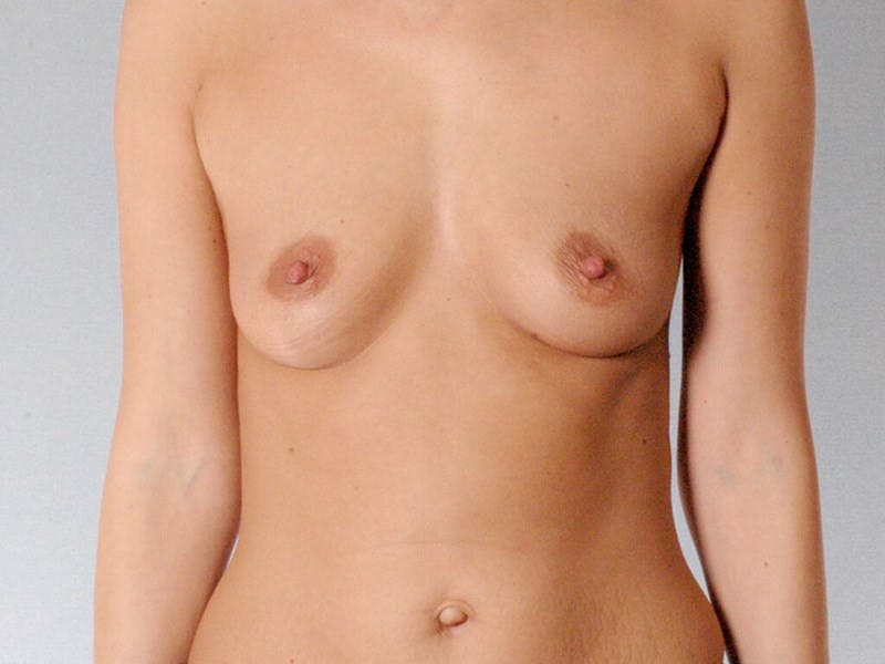 Breast Augmentation Gallery - Patient 20912943 - Image 1