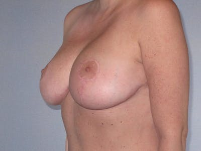 Breast Reduction Gallery - Patient 20912940 - Image 6