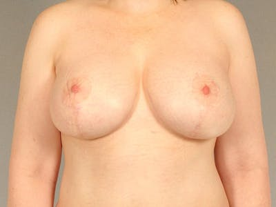 Breast Lift Gallery - Patient 20912942 - Image 2