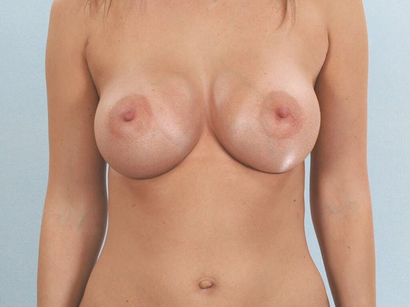 Breast Augmentation Gallery - Patient 20912943 - Image 2