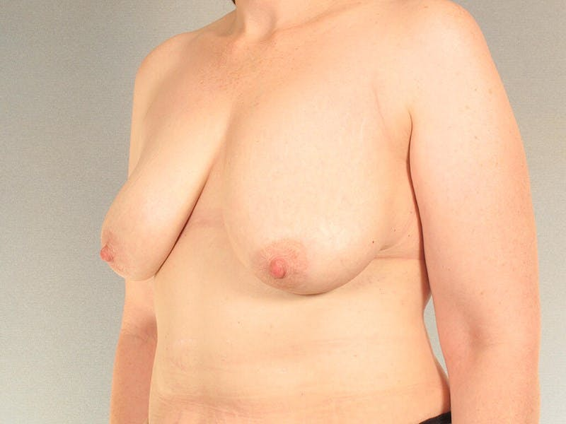 Breast Lift Gallery - Patient 20912942 - Image 3