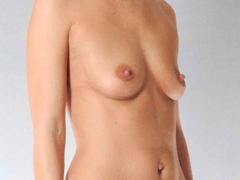 Breast Augmentation Gallery - Patient 20912943 - Image 3
