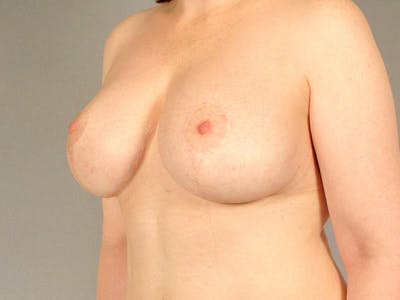 Breast Lift Gallery - Patient 20912942 - Image 4