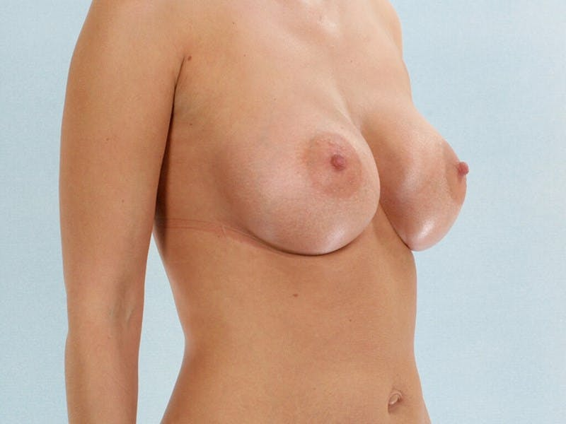 Breast Augmentation Gallery - Patient 20912943 - Image 4