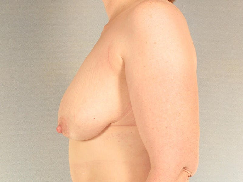 Breast Lift Gallery - Patient 20912942 - Image 5