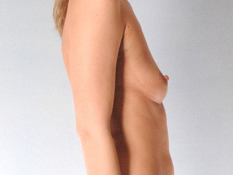 Breast Augmentation Gallery - Patient 20912943 - Image 5