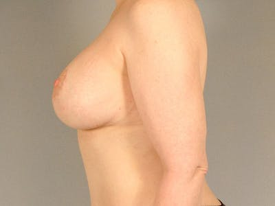 Breast Lift Gallery - Patient 20912942 - Image 6
