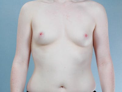 Breast Augmentation Gallery - Patient 20912946 - Image 1