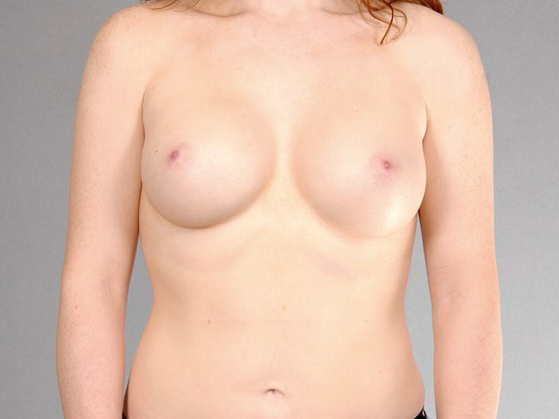 Breast Augmentation Gallery - Patient 20912946 - Image 2