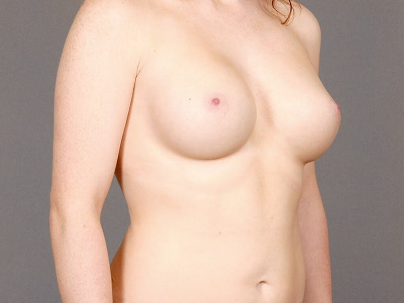 Breast Augmentation Gallery - Patient 20912946 - Image 4