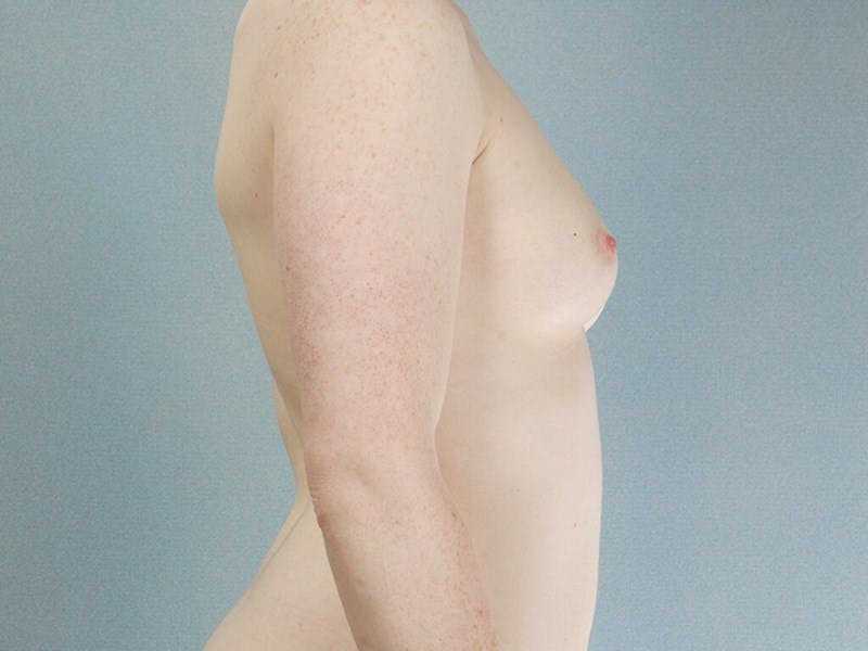 Breast Augmentation Gallery - Patient 20912946 - Image 5