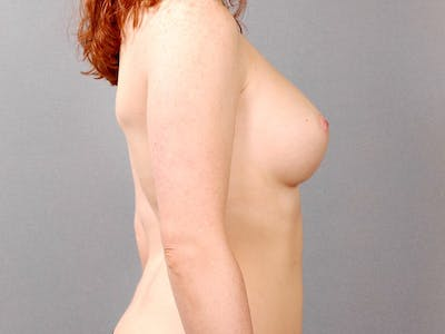 Breast Augmentation Gallery - Patient 20912946 - Image 6