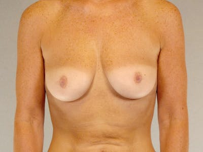 Breast Augmentation Gallery - Patient 20912949 - Image 1