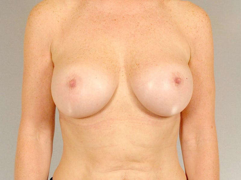 Breast Augmentation Gallery - Patient 20912949 - Image 2