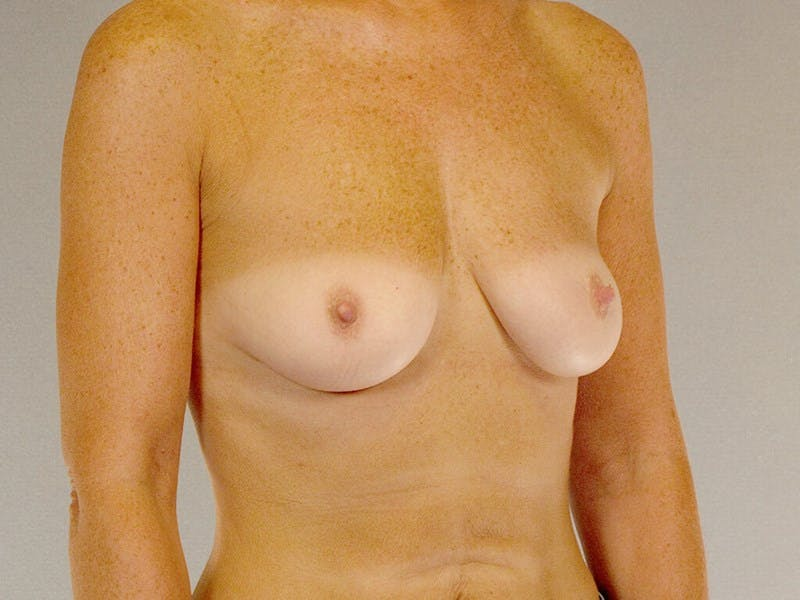 Breast Augmentation Gallery - Patient 20912949 - Image 3