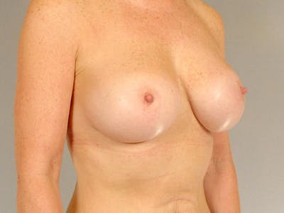 Breast Augmentation Gallery - Patient 20912949 - Image 4
