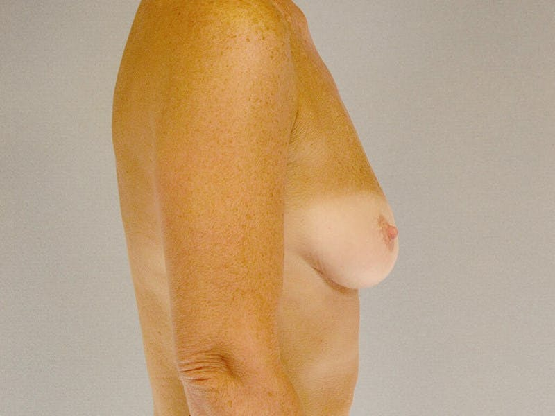 Breast Augmentation Gallery - Patient 20912949 - Image 5