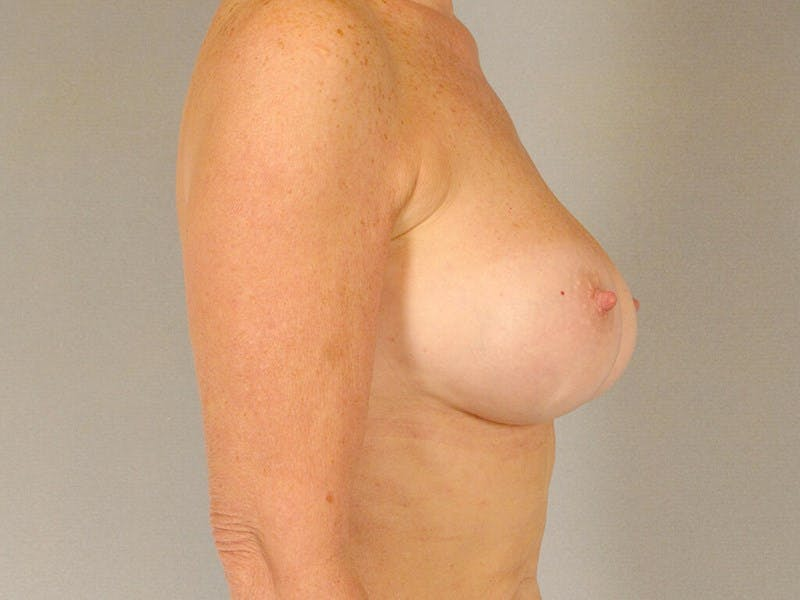 Breast Augmentation Gallery - Patient 20912949 - Image 6
