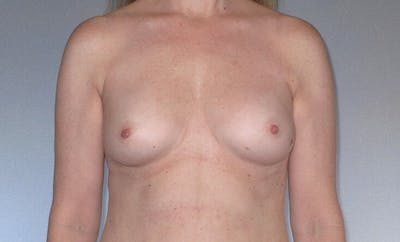 Breast Augmentation Gallery - Patient 20912952 - Image 1
