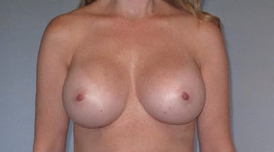 Breast Augmentation Gallery - Patient 20912952 - Image 2