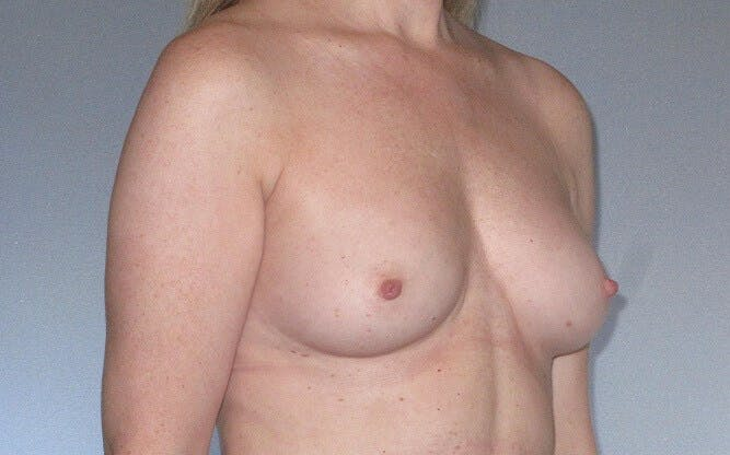 Breast Augmentation Gallery - Patient 20912952 - Image 3