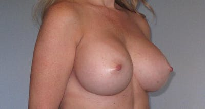 Breast Augmentation Gallery - Patient 20912952 - Image 4
