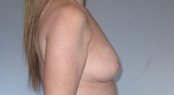 Breast Augmentation Gallery - Patient 20912952 - Image 5