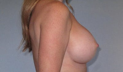Breast Augmentation Gallery - Patient 20912952 - Image 6