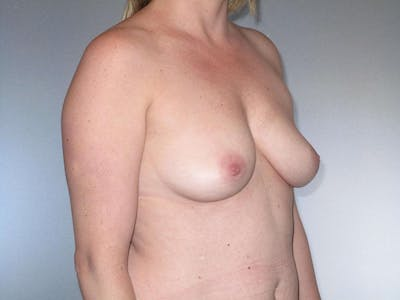 Breast Augmentation Gallery - Patient 20912954 - Image 1