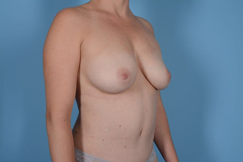 Breast Augmentation Gallery - Patient 20912954 - Image 2