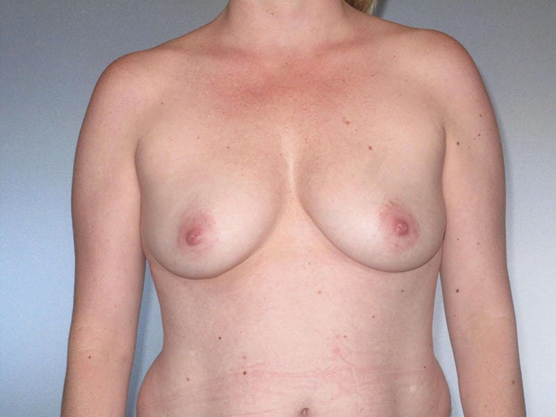 Breast Augmentation Gallery - Patient 20912954 - Image 3