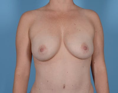 Breast Augmentation Gallery - Patient 20912954 - Image 4