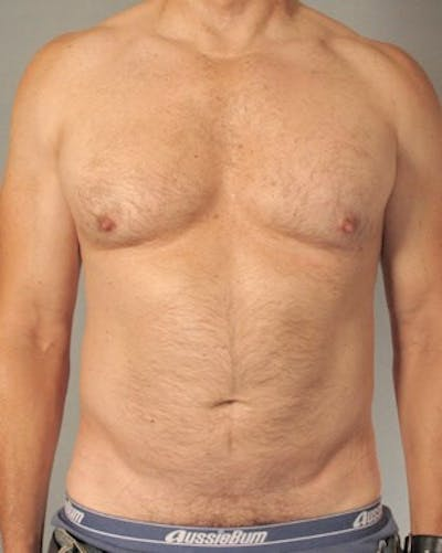 Abdominal Etching Gallery - Patient 20912959 - Image 1