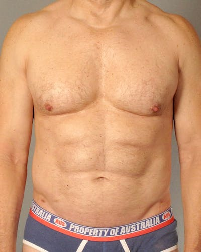 Abdominal Etching Gallery - Patient 20912959 - Image 2