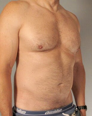 Abdominal Etching Gallery - Patient 20912959 - Image 3