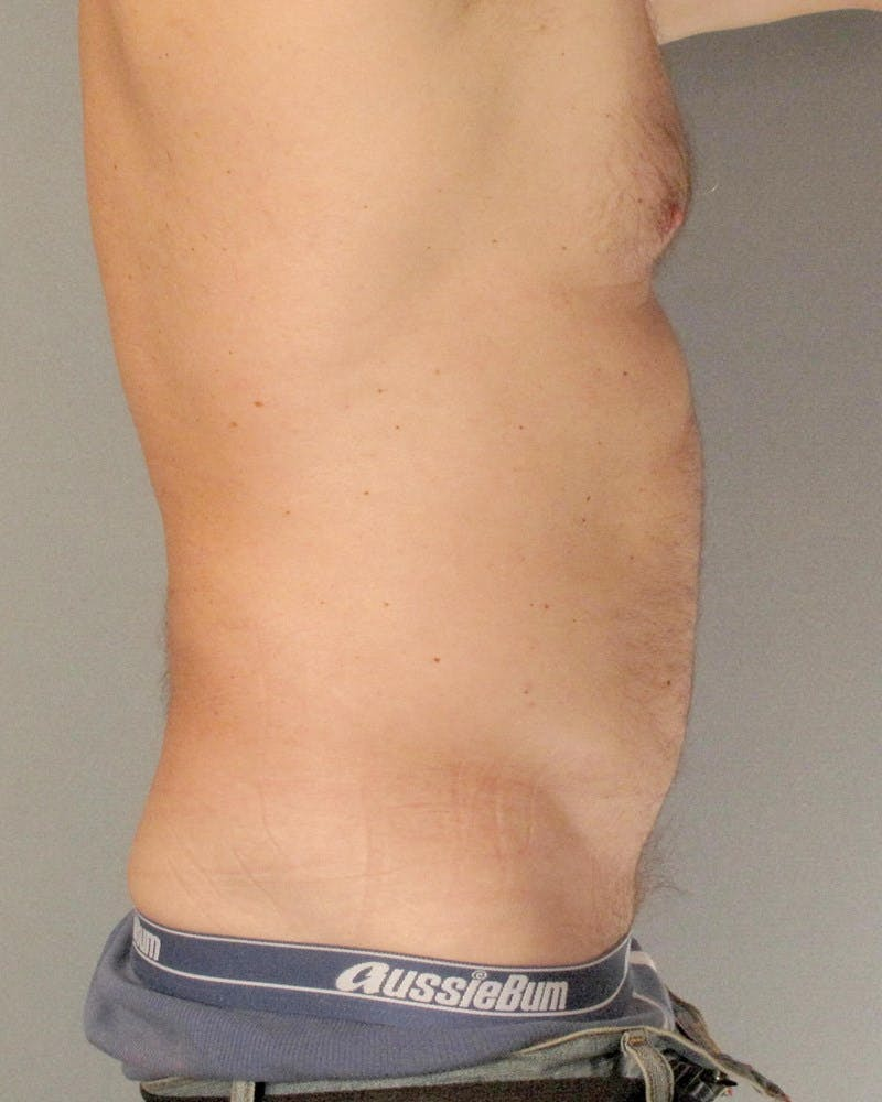 Abdominal Etching Gallery - Patient 20912959 - Image 5