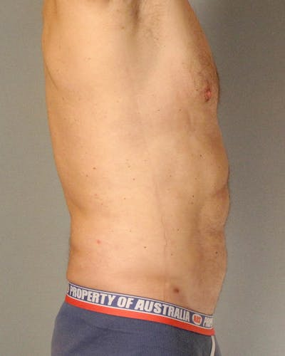 Abdominal Etching Gallery - Patient 20912959 - Image 6