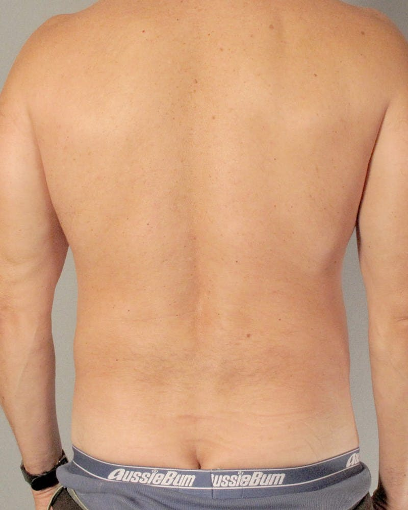 Abdominal Etching Gallery - Patient 20912959 - Image 7