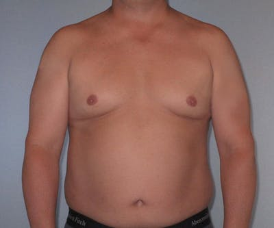 Abdominal Etching Gallery - Patient 20912961 - Image 1