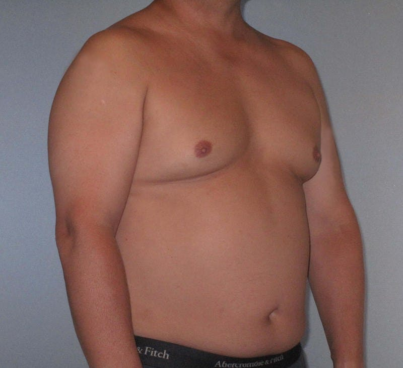 Abdominal Etching Gallery - Patient 20912961 - Image 3