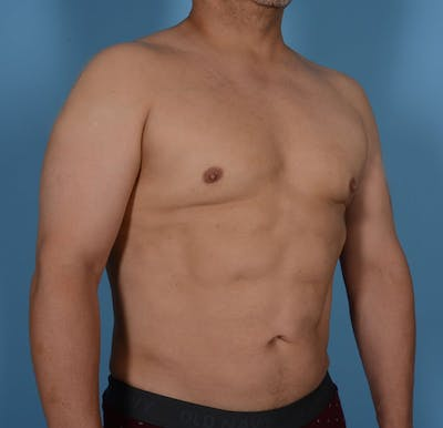 Abdominal Etching Gallery - Patient 20912961 - Image 4