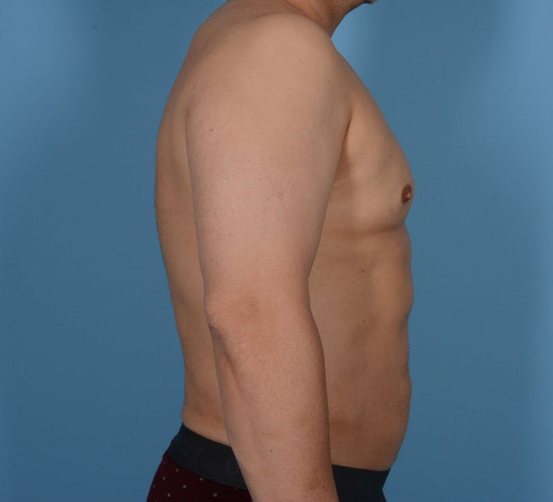 Abdominal Etching Gallery - Patient 20912961 - Image 6