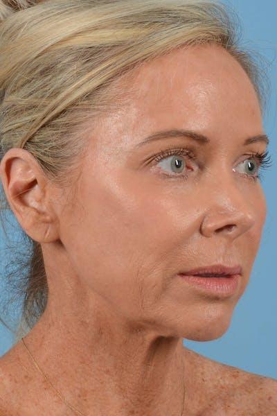 Laser Skin Resurfacing Gallery - Patient 20913099 - Image 1