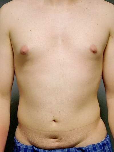 Abdominal Etching Gallery - Patient 20913097 - Image 1