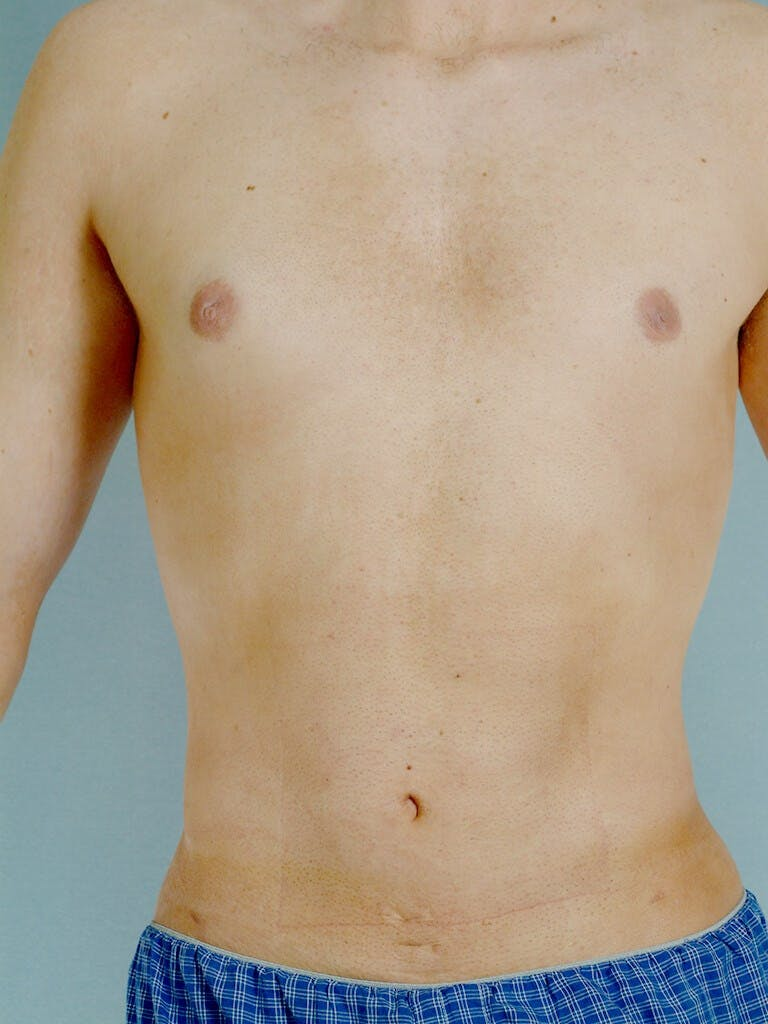 Abdominal Etching Gallery - Patient 20913097 - Image 2