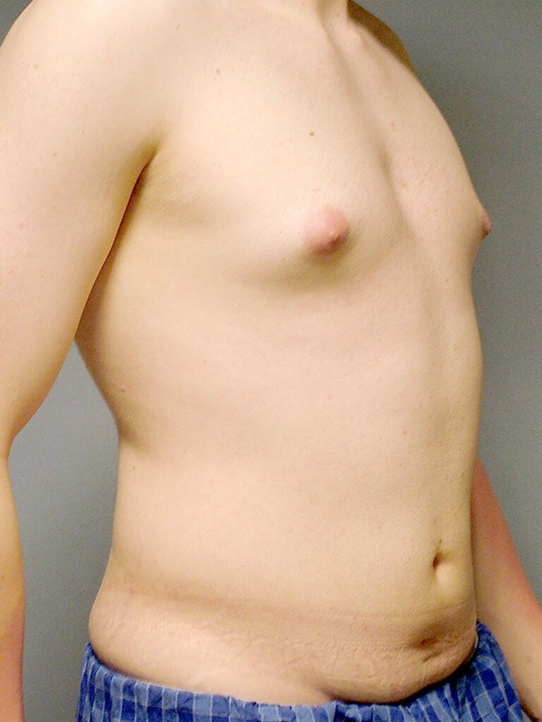 Abdominal Etching Gallery - Patient 20913097 - Image 3
