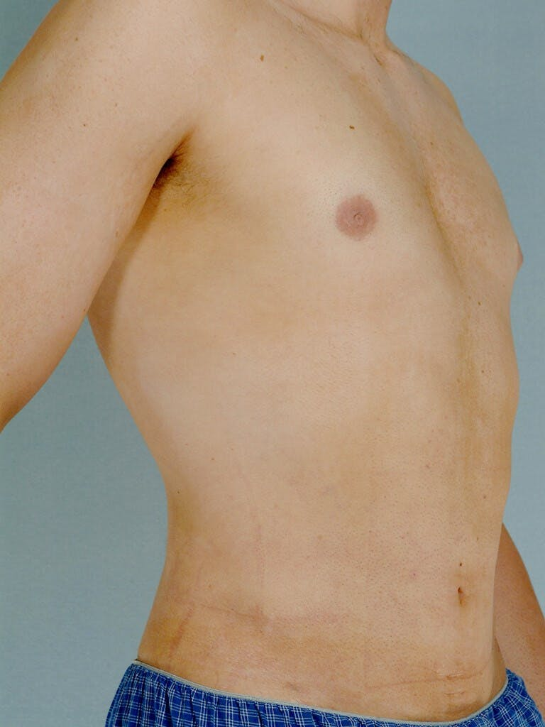 Abdominal Etching Gallery - Patient 20913097 - Image 4