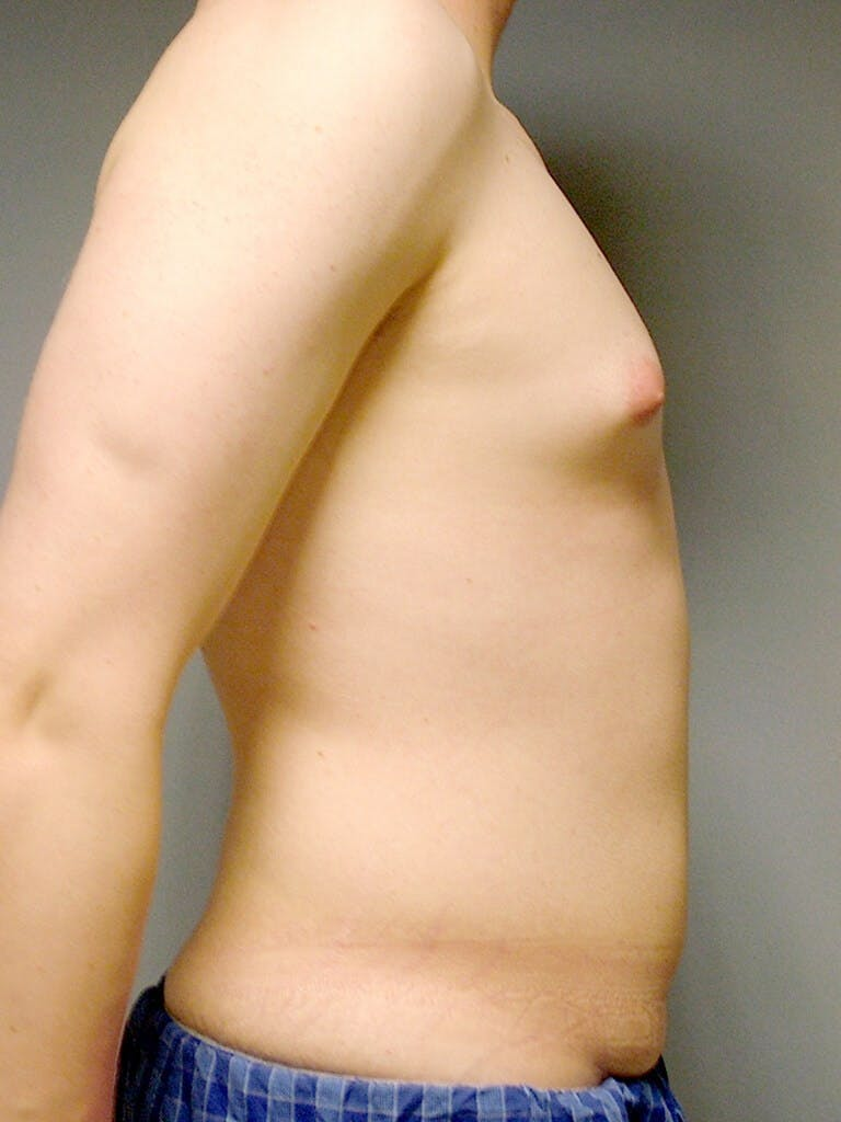 Abdominal Etching Gallery - Patient 20913097 - Image 5