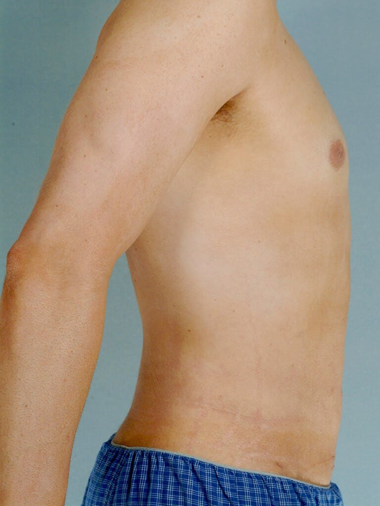 Abdominal Etching Gallery - Patient 20913097 - Image 6