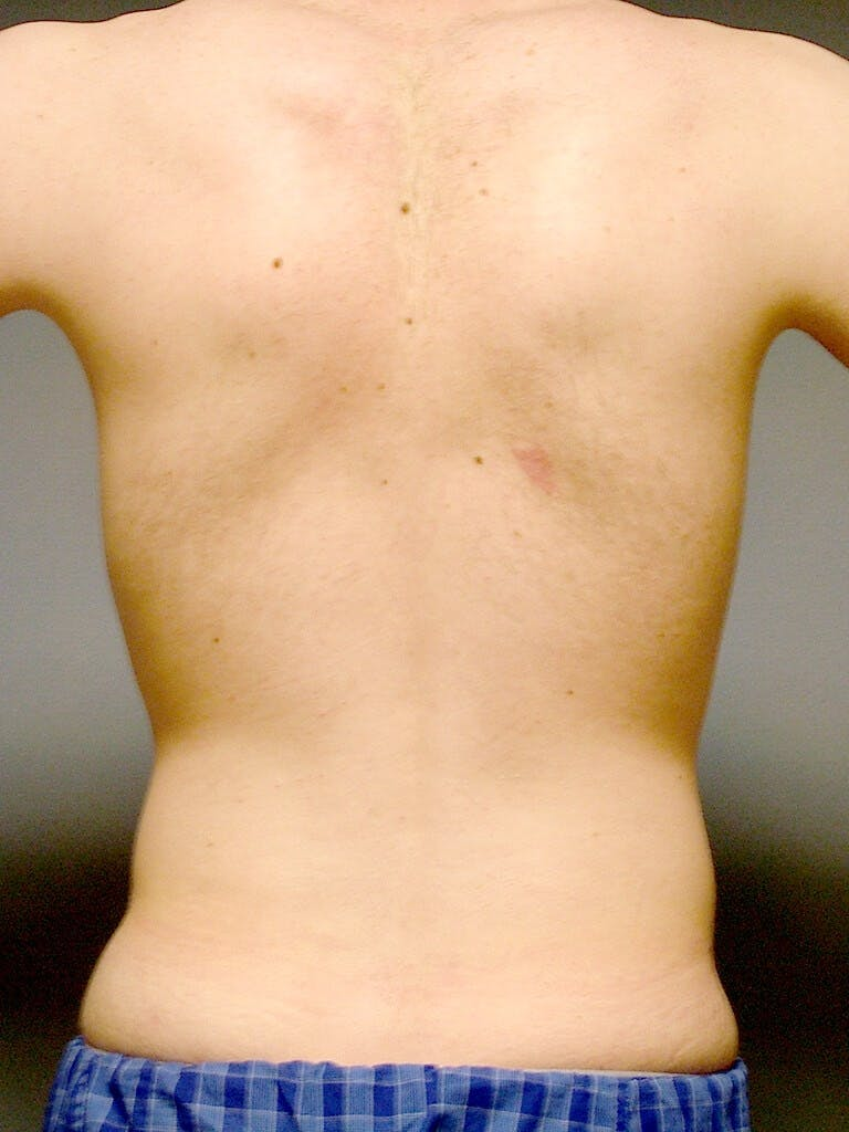 Abdominal Etching Gallery - Patient 20913097 - Image 7